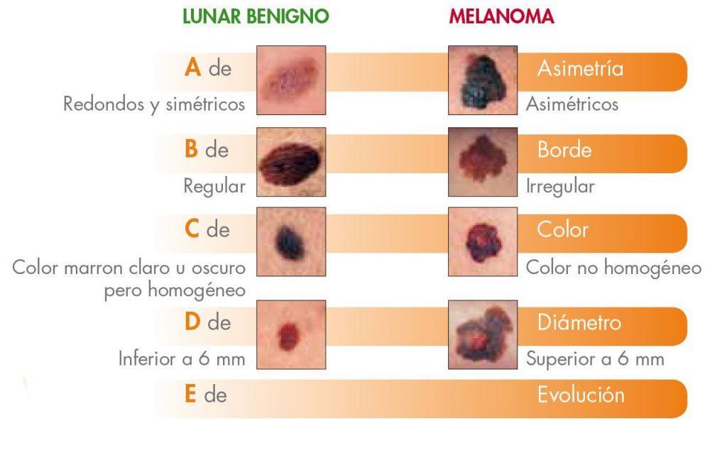Como identificar lunares malignos