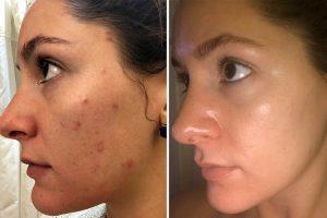 Tratamiento de acné en Quito
